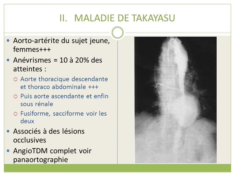 II.MALADIE DE TAKAYASU Aorto-artérite du sujet jeune, femmes+++ Anévrismes = 10 à 20% des atteintes : Aorte thoracique descendante et thoraco abdomina