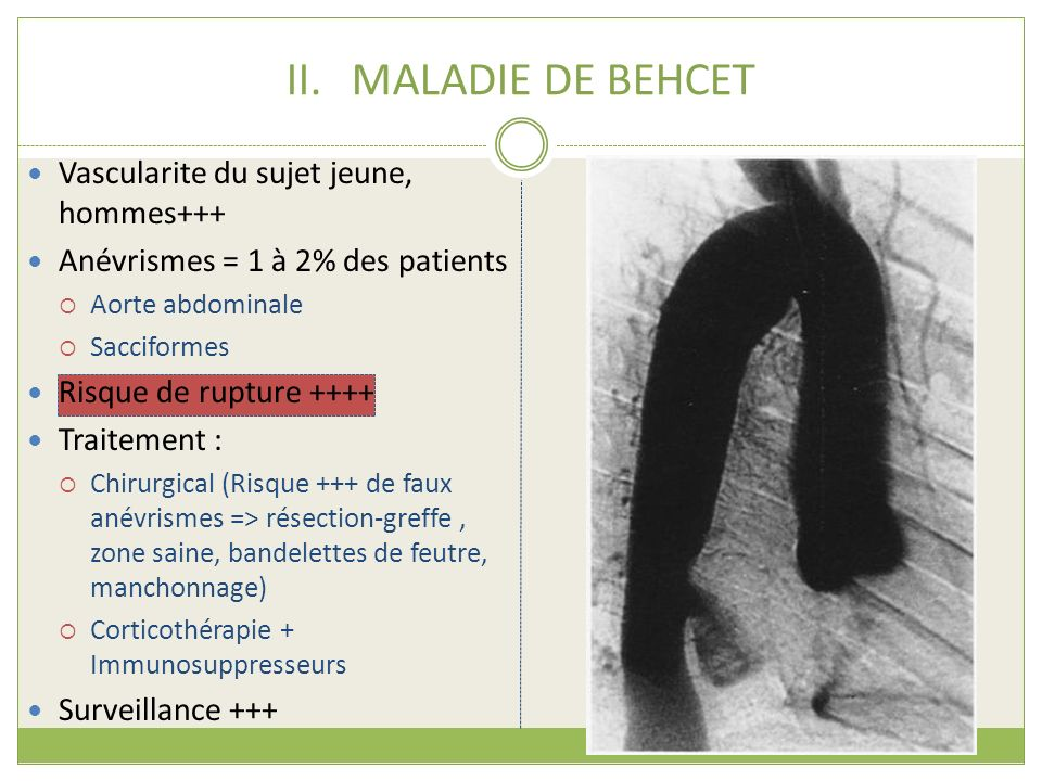 II.MALADIE DE BEHCET Vascularite du sujet jeune, hommes+++ Anévrismes = 1 à 2% des patients Aorte abdominale Sacciformes Risque de rupture ++++ Traite