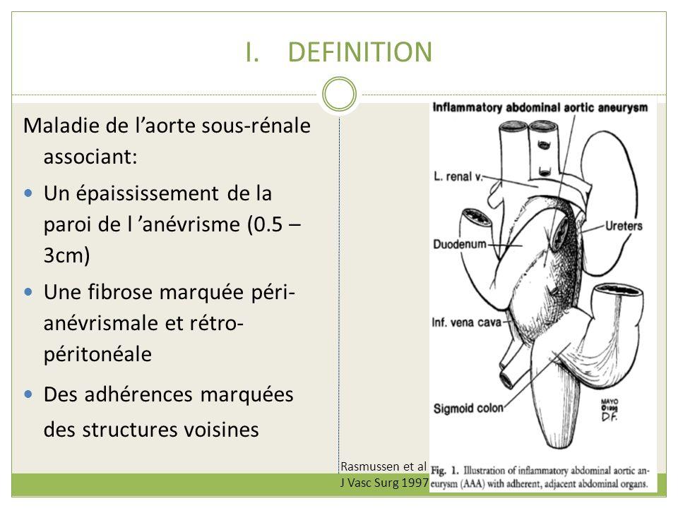 I.DEFINITION Maladie de laorte sous-rénale associant: Un épaississement de la paroi de l anévrisme (0.5 – 3cm) Une fibrose marquée péri- anévrismale e