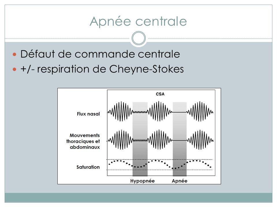 Apnée centrale Défaut de commande centrale +/- respiration de Cheyne-Stokes