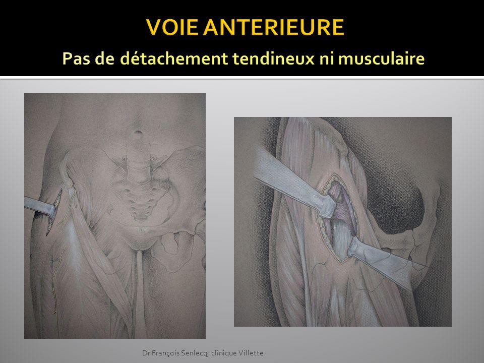 Watson Jones installation dorsale ou latérale (Rottingher & Bertin ) One incision Dr François Senlecq, clinique Villette