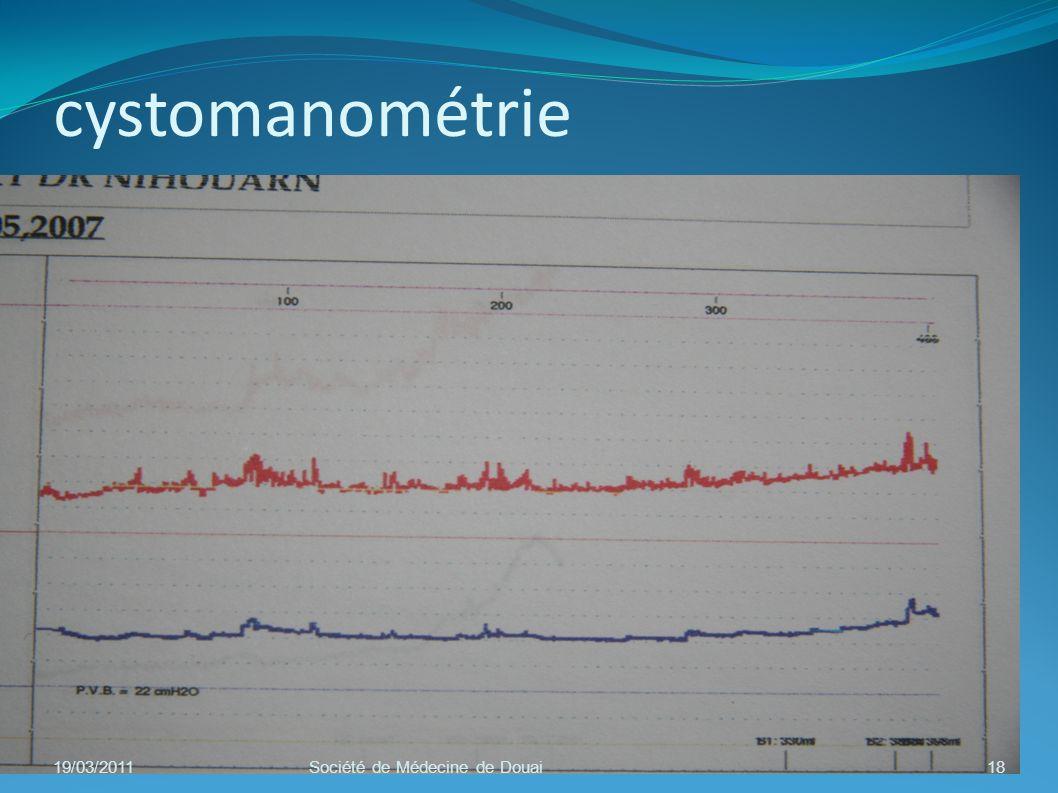cystomanométrie 19/03/201118Société de Médecine de Douai