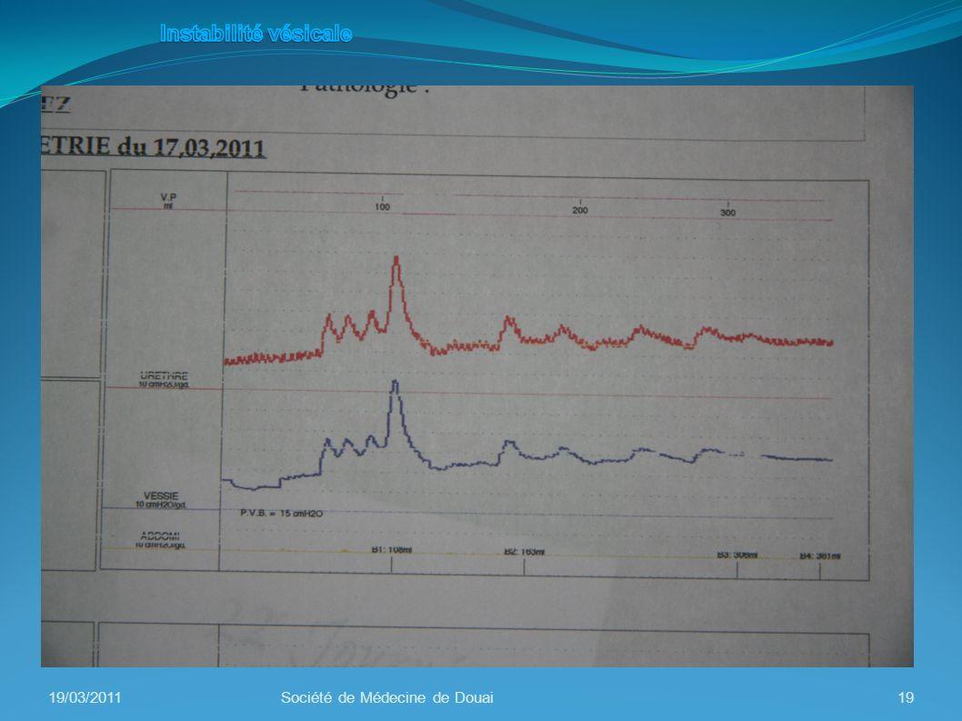 19/03/2011Société de Médecine de Douai19