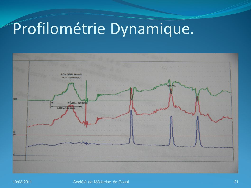 Profilométrie Dynamique. 19/03/2011Société de Médecine de Douai21