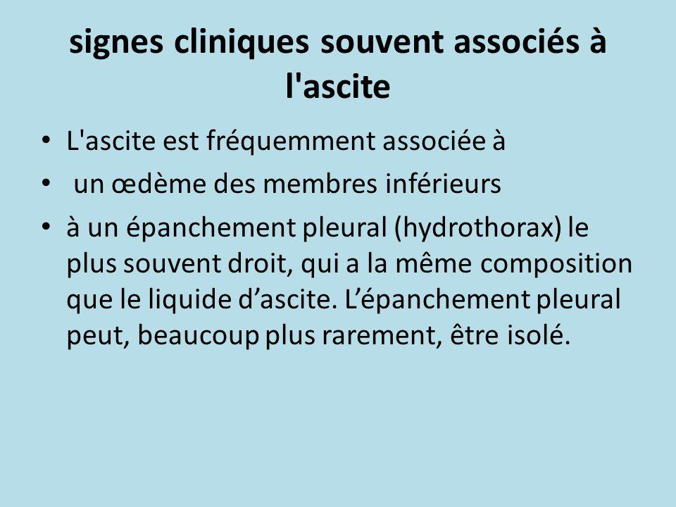 signes cliniques souvent associés à l'ascite L'ascite est fréquemment associée à un œdème des membres inférieurs à un épanchement pleural (hydrothorax