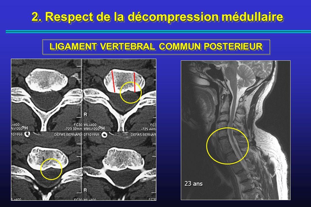 2. Respect de la décompression médullaire LIGAMENT VERTEBRAL COMMUN POSTERIEUR 23 ans