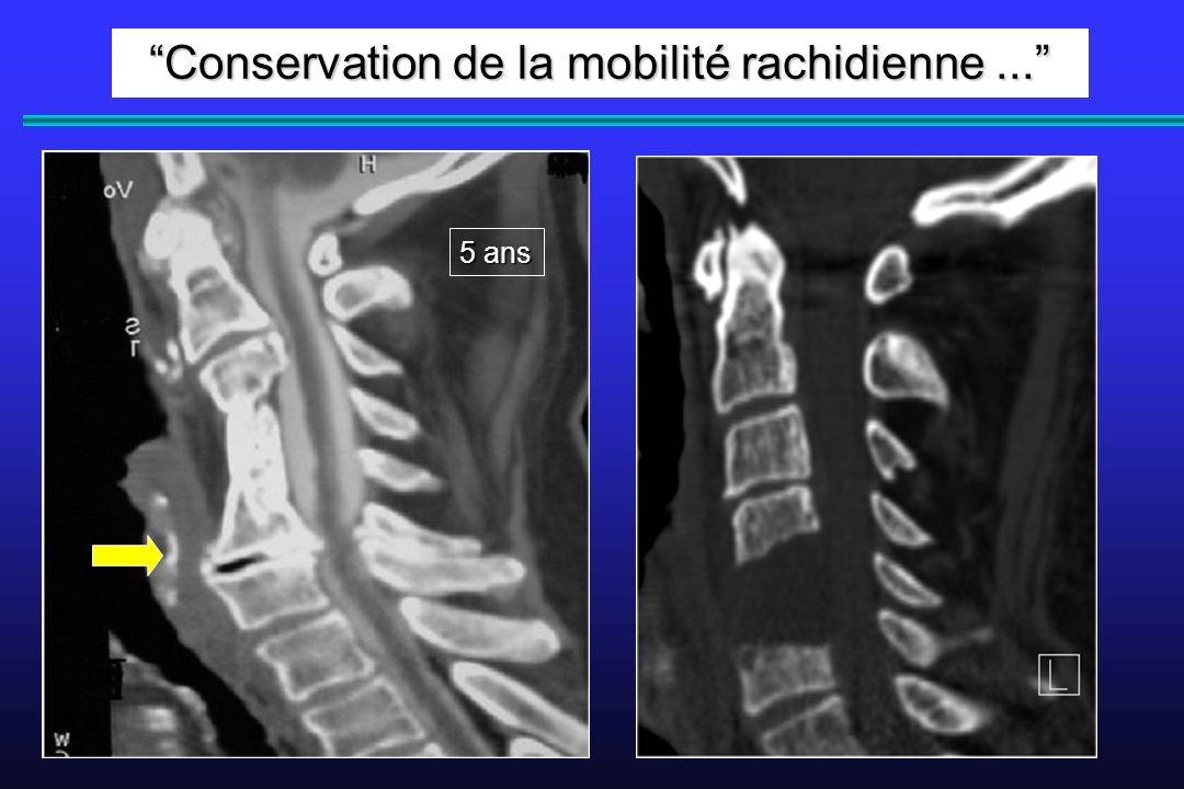 Conservation de la mobilité rachidienne... 5 ans