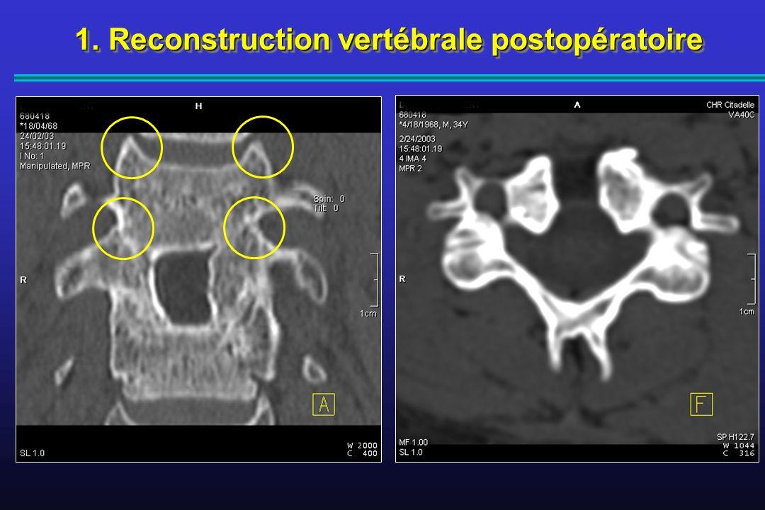 1.Reconstruction vertébrale postopératoire