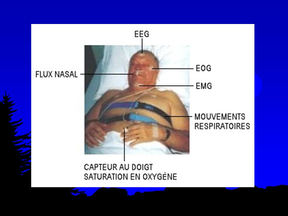 Sommeil en altitude Insomnie à partir de 2000 m Fragmentation du sommeil Disparition SLP et diminution du SP Modifications ventilatoires : hypoxie Amélioré par lacclimatation Facteurs perturbateurs Etudes pendant lacclimatation Stress, effort, froid …