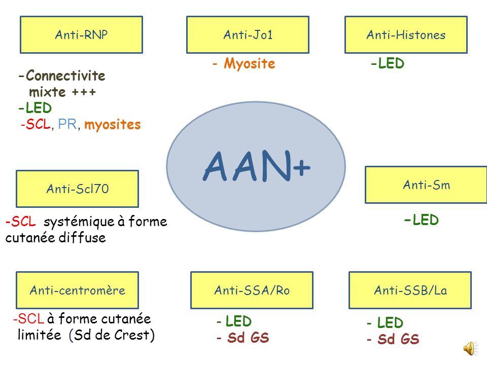 - Ac antinucléaires (IFI-Hep2) : Positifs à 1/1280,aspect moucheté - Facteur rhumatoïde : Négatif - VDRL/TPHA : Négatifs - Anti-ADN natifs (IFI sur CL