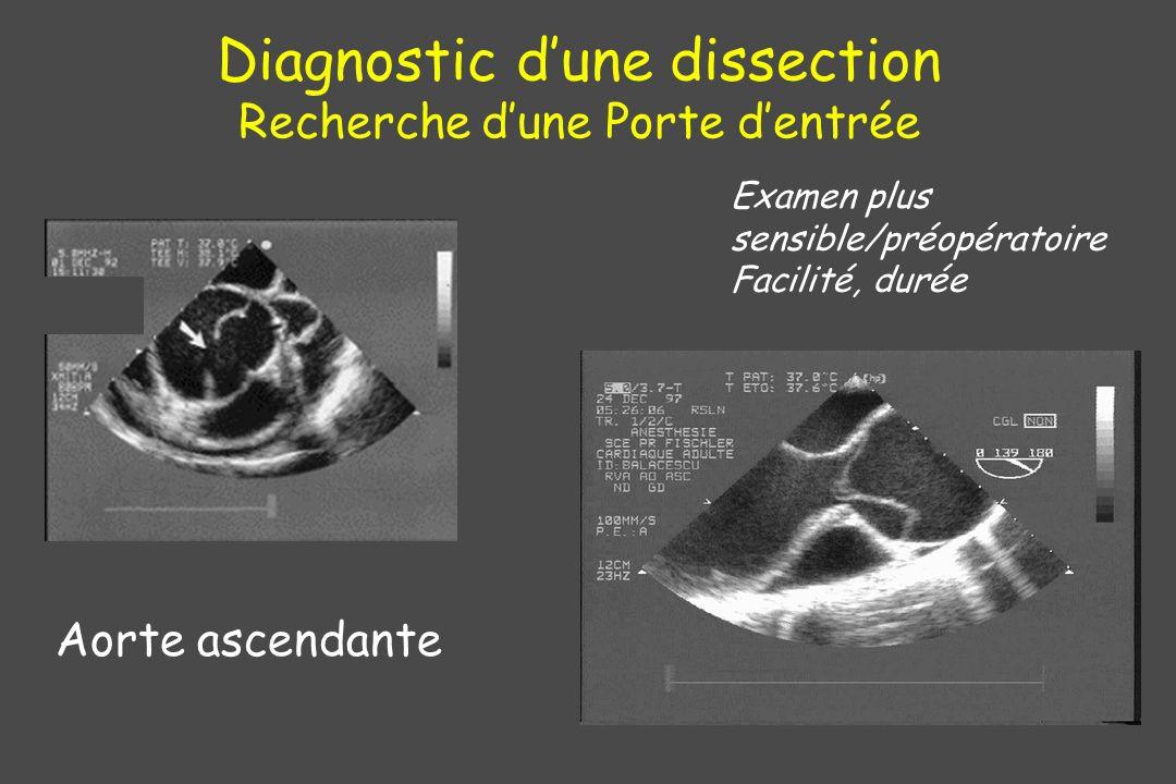 Diagnostic dune dissection Recherche dune Porte dentrée Aorte ascendante Examen plus sensible/préopératoire Facilité, durée