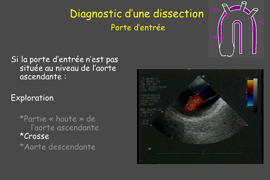 Diagnostic dune dissection Porte dentrée Si la porte dentrée nest pas située au niveau de laorte ascendante : Exploration *Partie « haute » de laorte