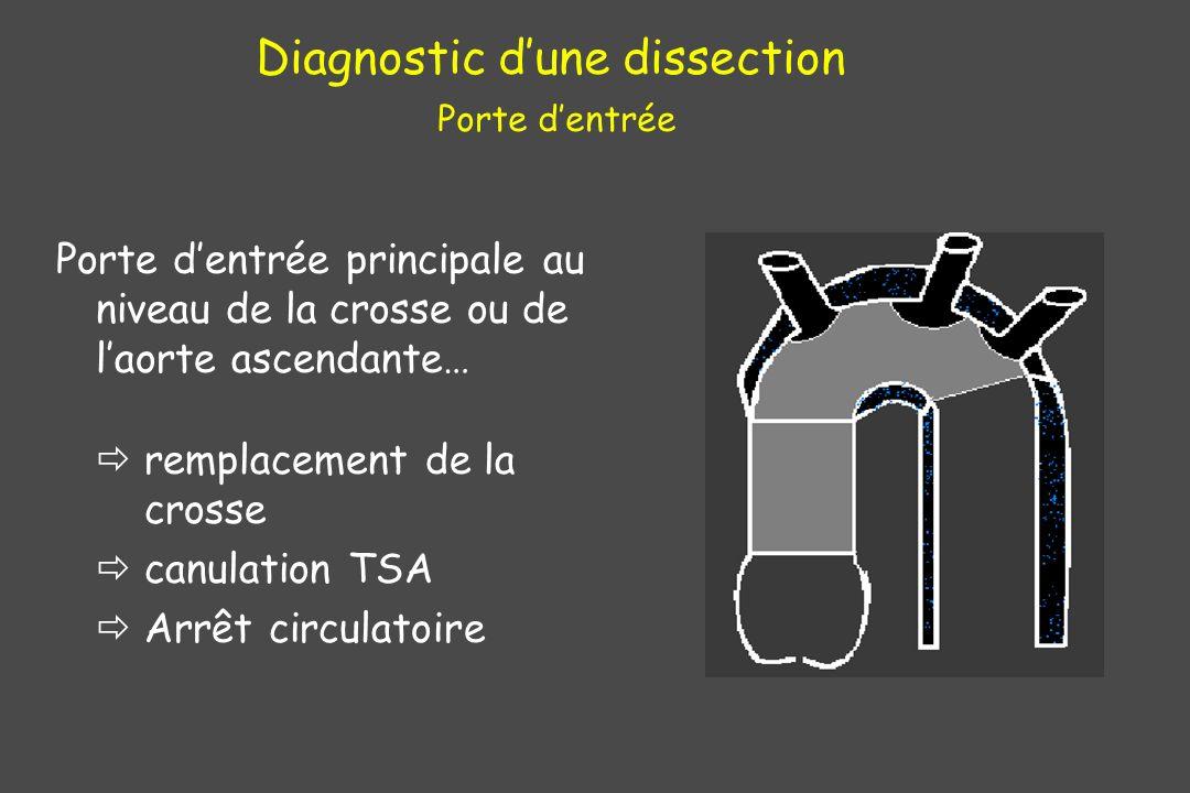 Porte dentrée principale au niveau de la crosse ou de laorte ascendante… remplacement de la crosse canulation TSA Arrêt circulatoire Diagnostic dune d