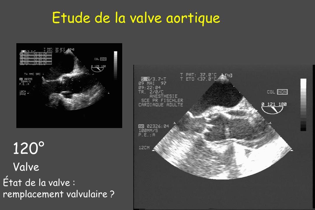 120° Valve Etude de la valve aortique État de la valve : remplacement valvulaire ?