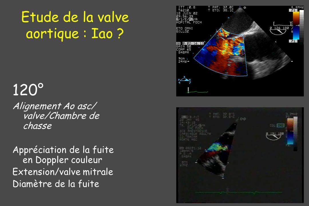 120° Alignement Ao asc/ valve/Chambre de chasse Appréciation de la fuite en Doppler couleur Extension/valve mitrale Diamètre de la fuite Etude de la v