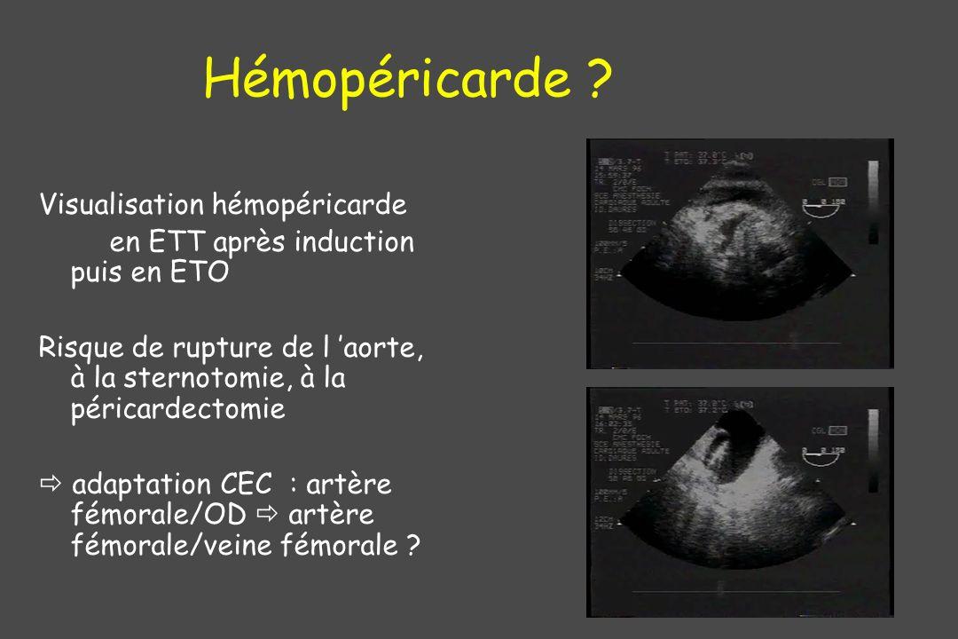 Hémopéricarde ? Visualisation hémopéricarde en ETT après induction puis en ETO Risque de rupture de l aorte, à la sternotomie, à la péricardectomie ad