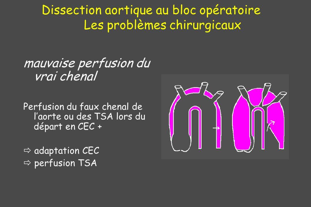 Dissection aortique au bloc opératoire Les problèmes chirurgicaux mauvaise perfusion du vrai chenal Perfusion du faux chenal de laorte ou des TSA lors