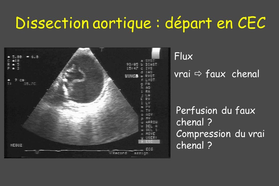 Dissection aortique : départ en CEC Flux vrai faux chenal Perfusion du faux chenal ? Compression du vrai chenal ?
