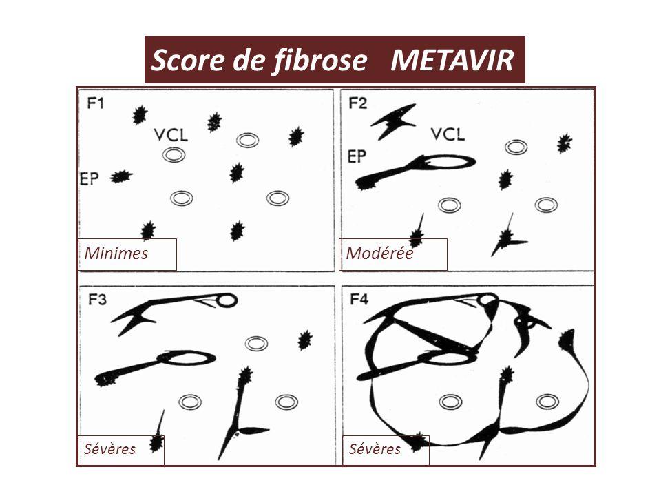 Score de fibrose METAVIR MinimesModérée Sévères