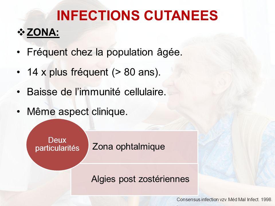 ZONA: Fréquent chez la population âgée. 14 x plus fréquent (> 80 ans). Baisse de limmunité cellulaire. Même aspect clinique. INFECTIONS CUTANEES Zona