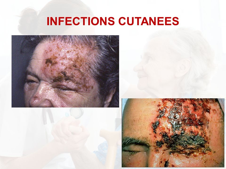 INFECTIONS CUTANEES