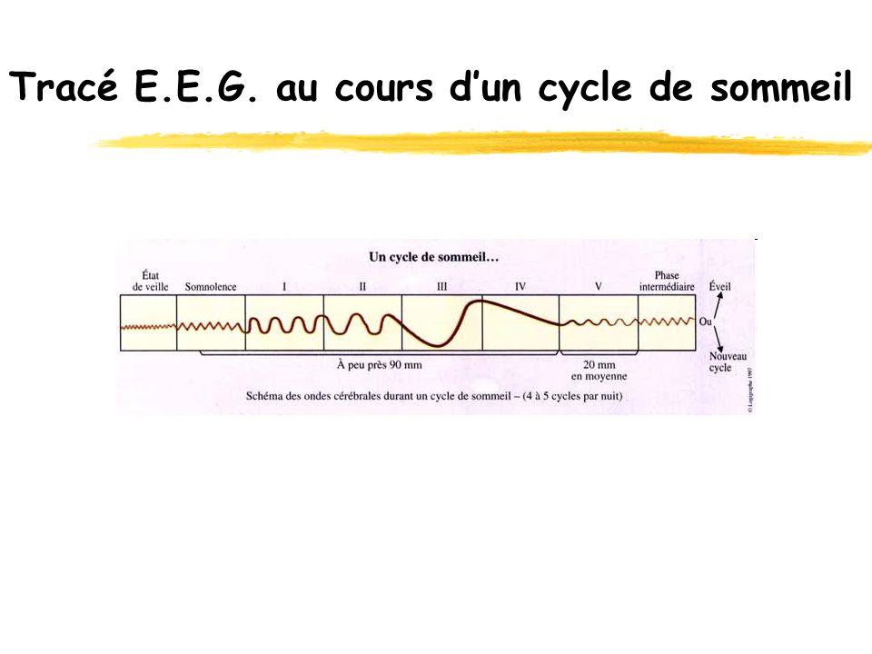 Tracé E.E.G. au cours dun cycle de sommeil