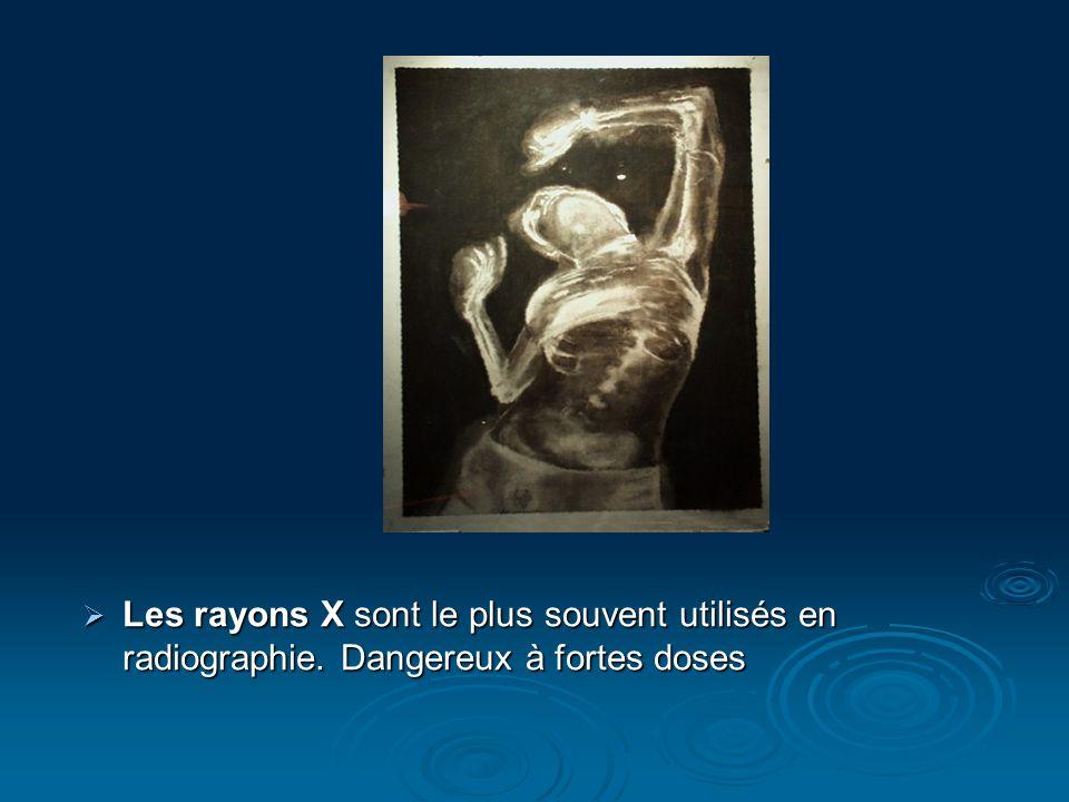 Les rayons X sont le plus souvent utilisés en radiographie. Dangereux à fortes doses Les rayons X sont le plus souvent utilisés en radiographie. Dange