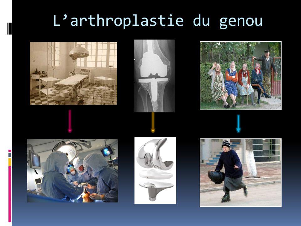 Larthroplastie du genou