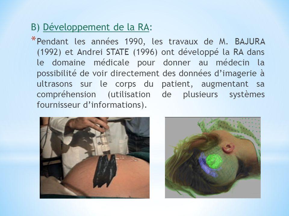 B) Développement de la RA: * Pendant les années 1990, les travaux de M. BAJURA (1992) et Andrei STATE (1996) ont développé la RA dans le domaine médic