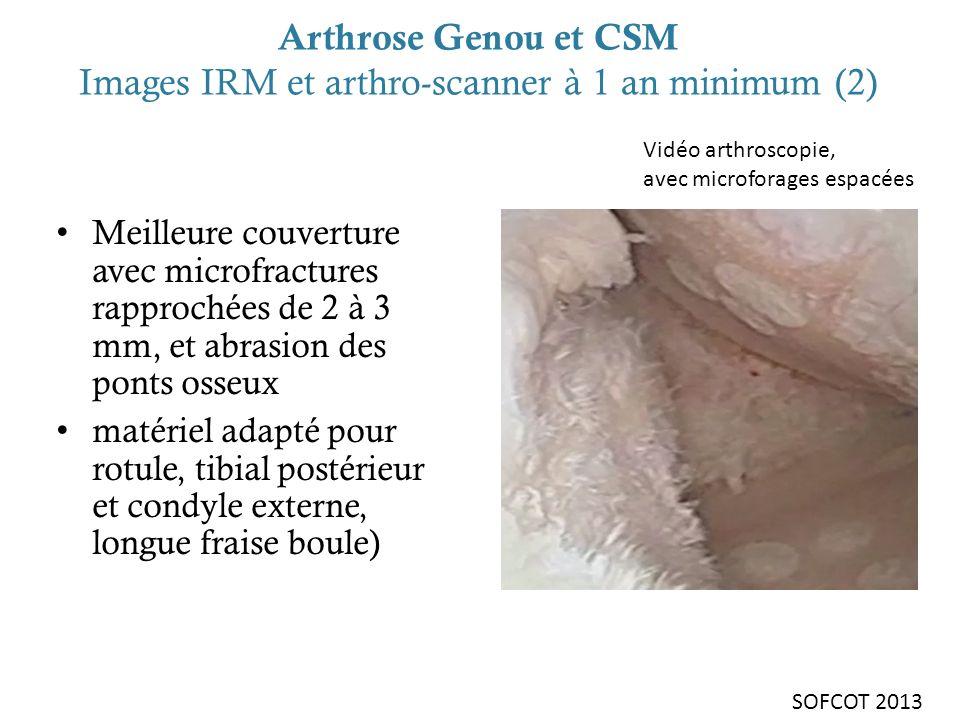 Arthrose Genou et CSM Images IRM et arthro-scanner à 1 an minimum (2) Meilleure couverture avec microfractures rapprochées de 2 à 3 mm, et abrasion de