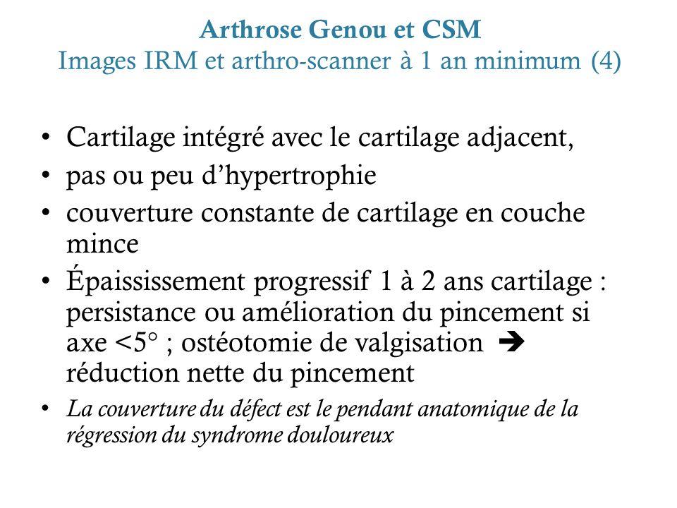 Arthrose Genou et CSM Images IRM et arthro-scanner à 1 an minimum (4) Cartilage intégré avec le cartilage adjacent, pas ou peu dhypertrophie couvertur