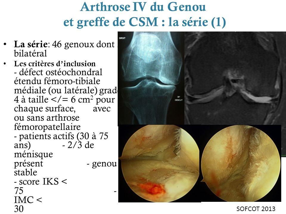Arthrose IV du Genou et greffe de CSM : la série (1) La série : 46 genoux dont 3 bilatéral Les critères dinclusion - défect ostéochondral étendu fémor