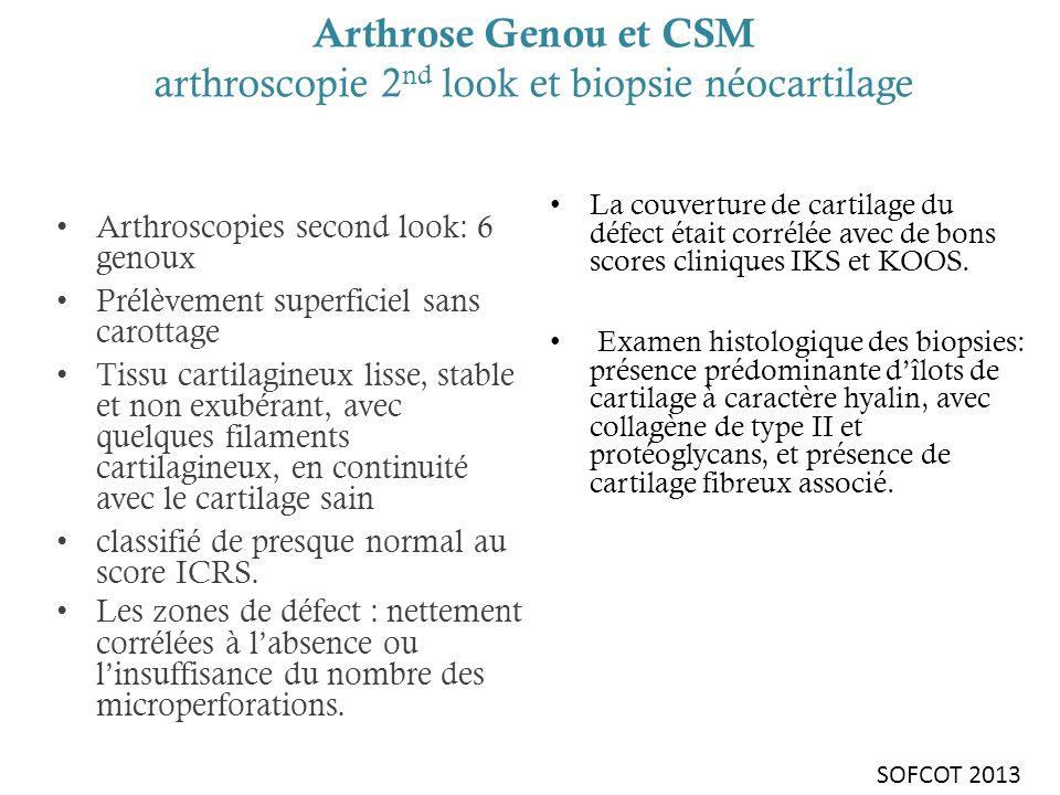 Arthrose Genou et CSM arthroscopie 2 nd look et biopsie néocartilage Arthroscopies second look: 6 genoux Prélèvement superficiel sans carottage Tissu