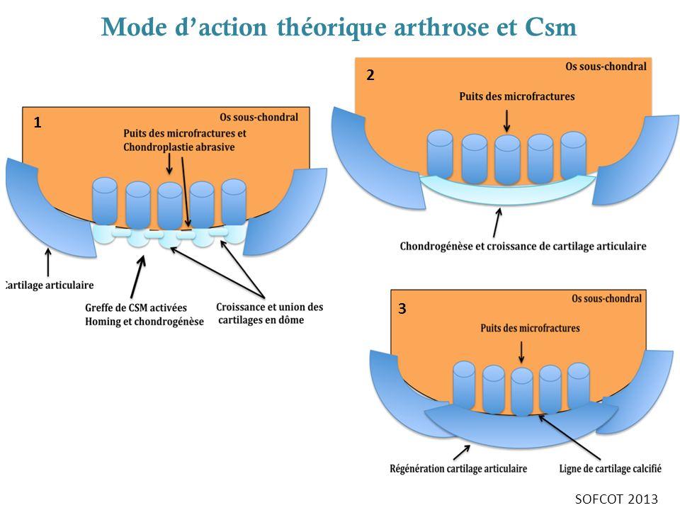 Mode daction théorique arthrose et Csm 1 2 3 SOFCOT 2013