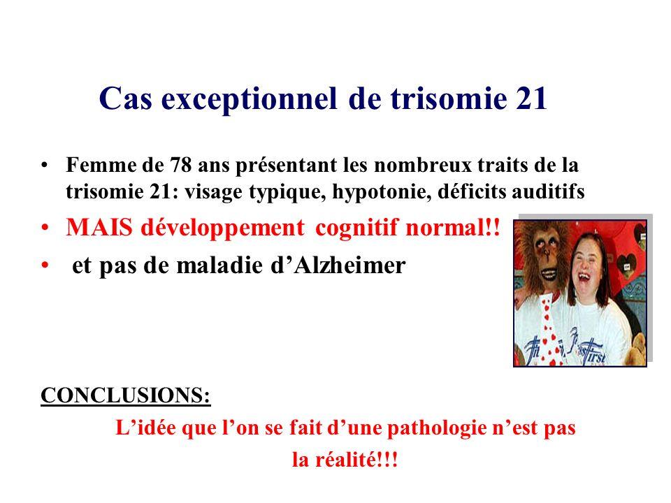 Cas exceptionnel de trisomie 21 Femme de 78 ans présentant les nombreux traits de la trisomie 21: visage typique, hypotonie, déficits auditifs MAIS dé