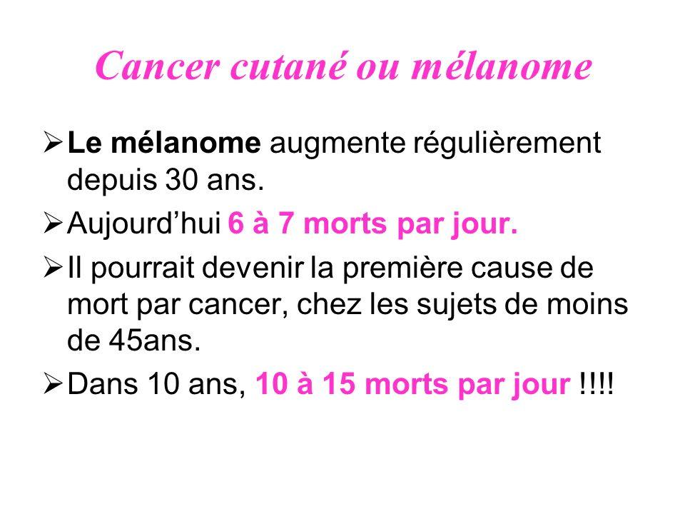 Cancer cutané ou mélanome Le mélanome augmente régulièrement depuis 30 ans. Aujourdhui 6 à 7 morts par jour. Il pourrait devenir la première cause de