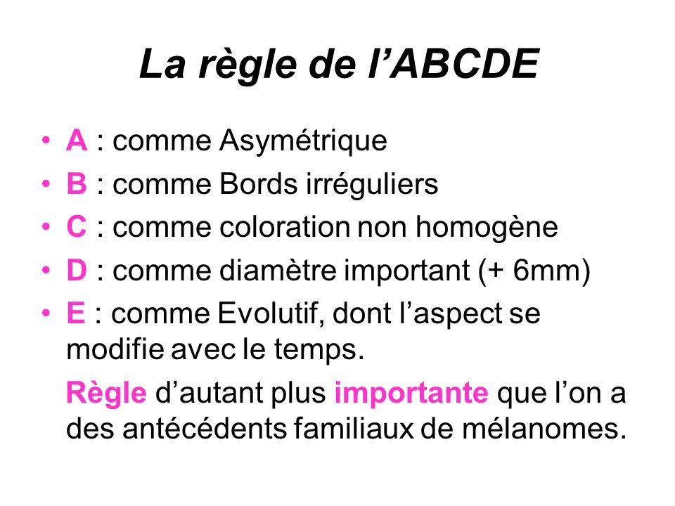 La règle de lABCDE A : comme Asymétrique B : comme Bords irréguliers C : comme coloration non homogène D : comme diamètre important (+ 6mm) E : comme