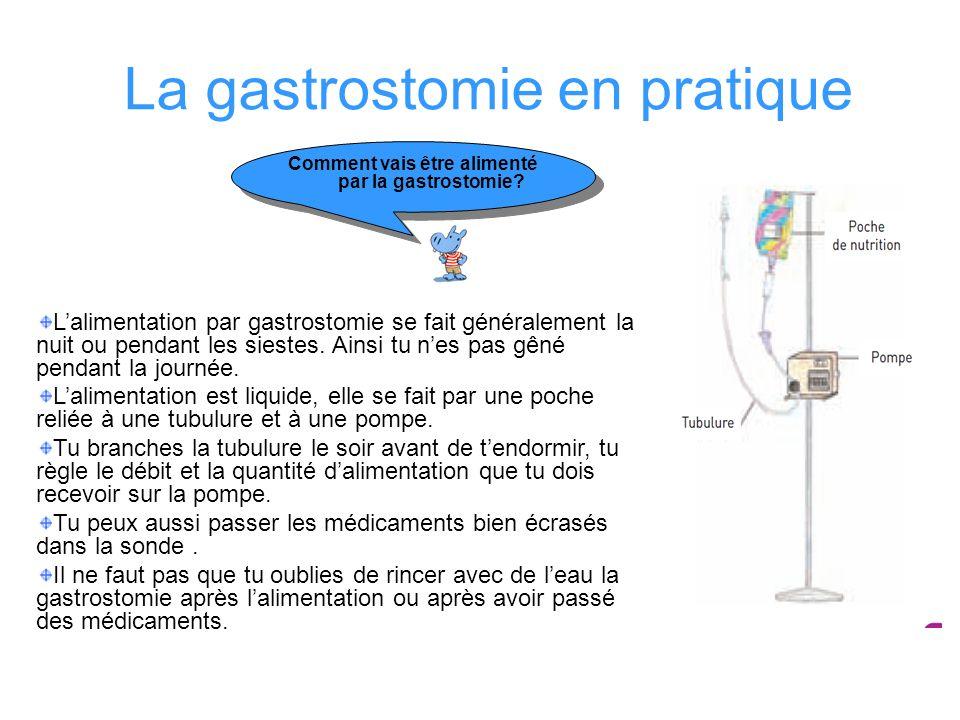 La gastrostomie en pratique Comment vais être alimenté par la gastrostomie? Lalimentation par gastrostomie se fait généralement la nuit ou pendant les