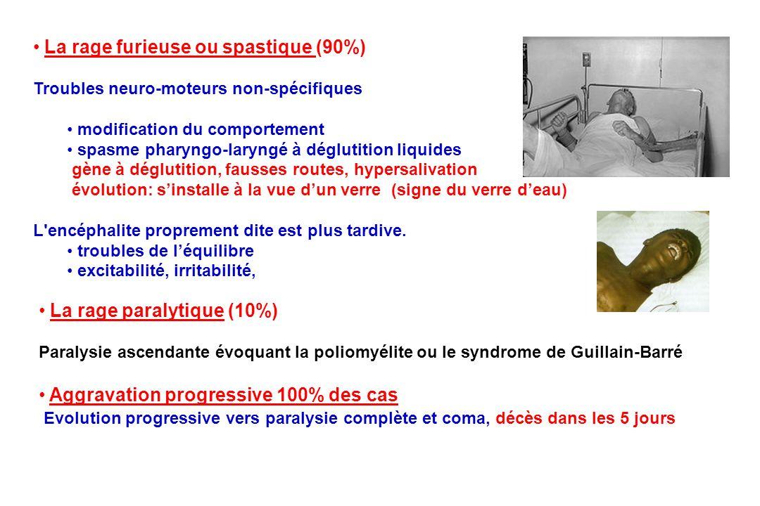 La rage paralytique (10%) Paralysie ascendante évoquant la poliomyélite ou le syndrome de Guillain-Barré La rage furieuse ou spastique (90%) Troubles