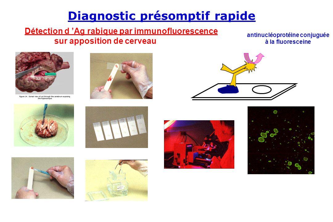Détection d Ag rabique par immunofluorescence sur apposition de cerveau antinucléoprotéine conjuguée à la fluoresceine Diagnostic présomptif rapide