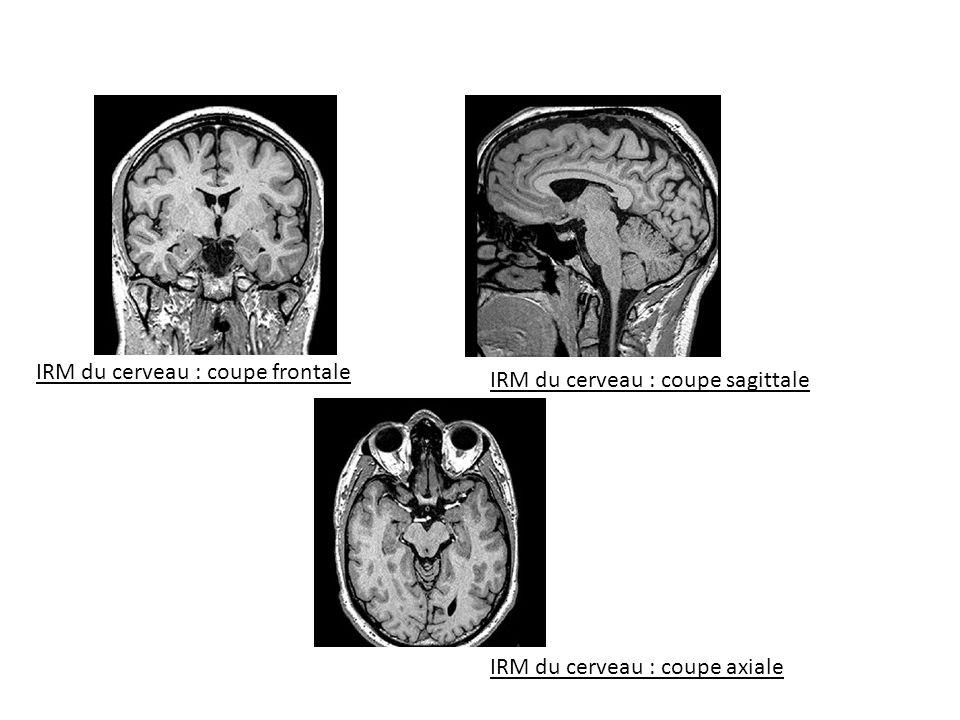 IRM du cerveau : coupe axiale IRM du cerveau : coupe sagittale IRM du cerveau : coupe frontale
