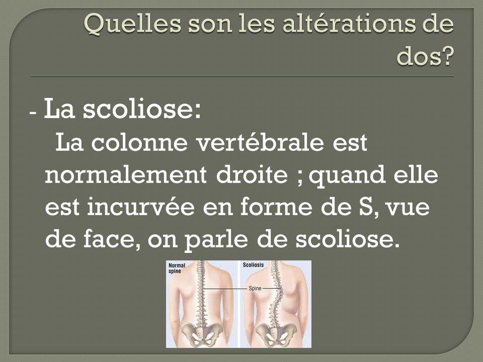 - La scoliose: La colonne vertébrale est normalement droite ; quand elle est incurvée en forme de S, vue de face, on parle de scoliose.