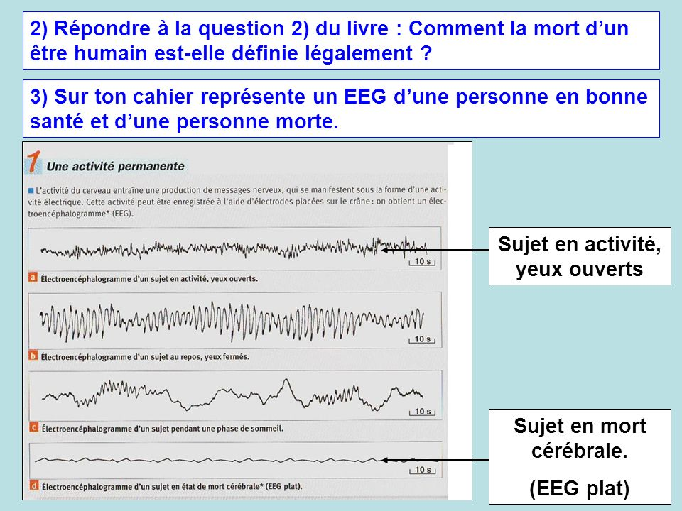 2) Répondre à la question 2) du livre : Comment la mort dun être humain est-elle définie légalement ? 3) Sur ton cahier représente un EEG dune personn
