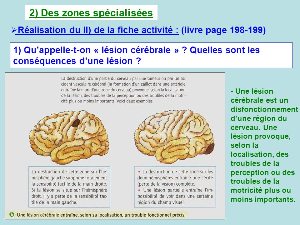 2) Des zones spécialisées Réalisation du II) de la fiche activité : (livre page 198-199) 1) Quappelle-t-on « lésion cérébrale » ? Quelles sont les con