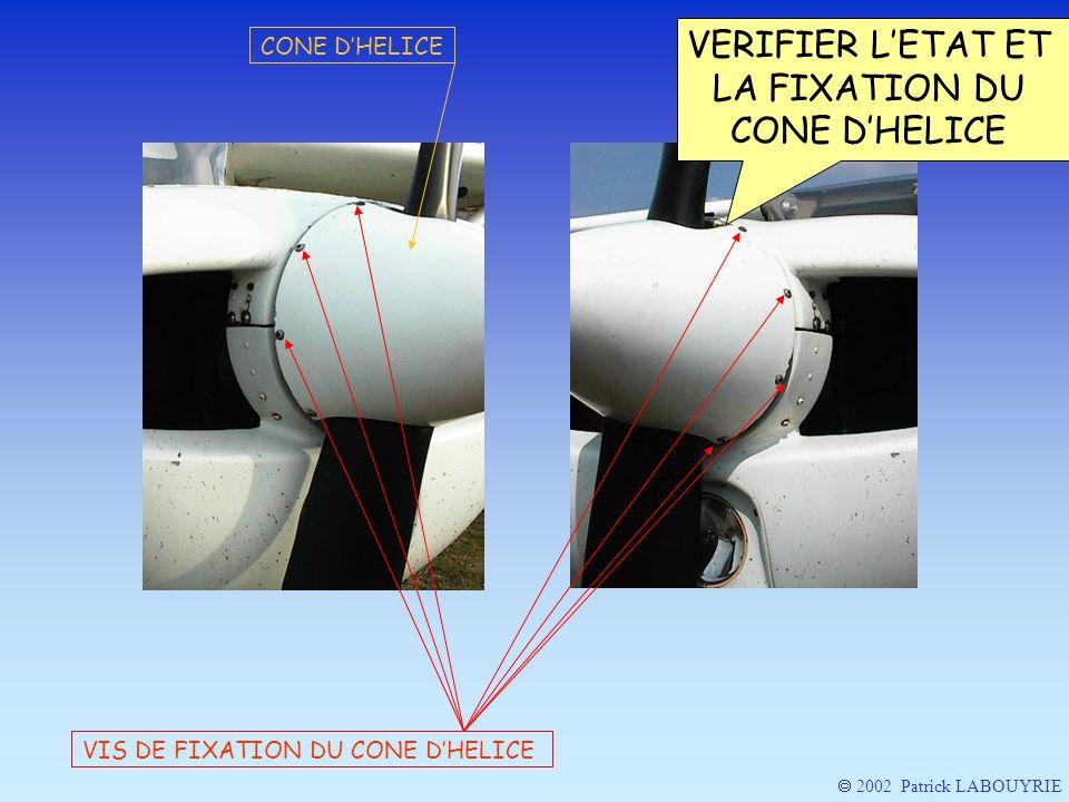 VIS DE FIXATION DU CONE DHELICE CONE DHELICE 2002 Patrick LABOUYRIE VERIFIER LETAT ET LA FIXATION DU CONE DHELICE