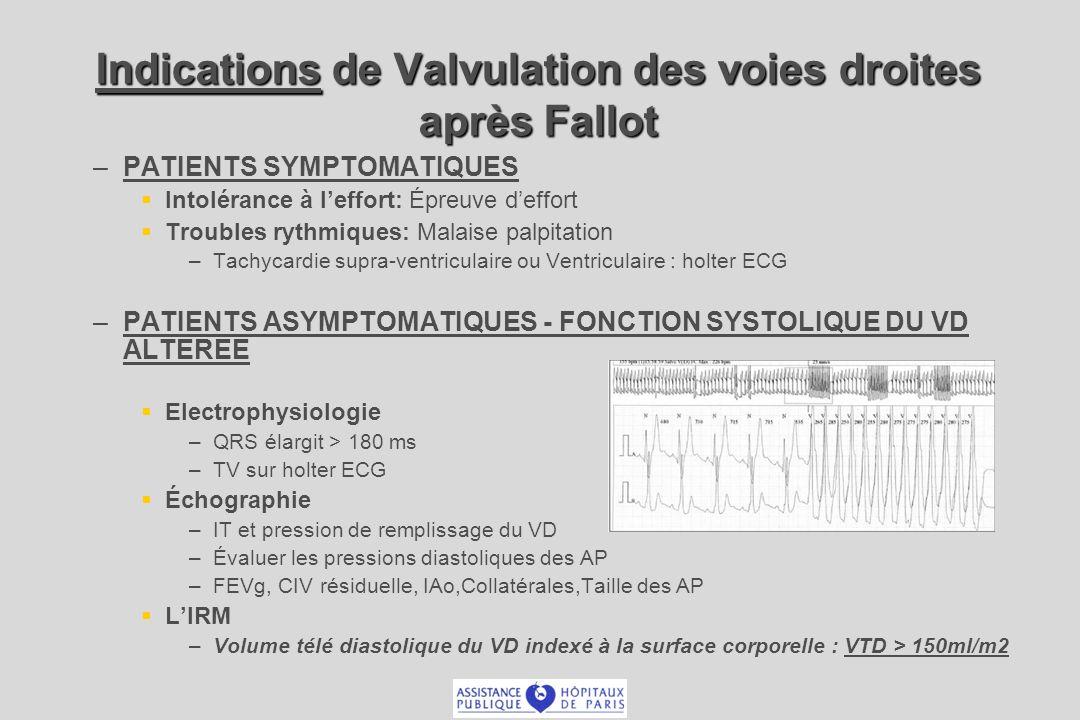 Indications de Valvulation des voies droites après Fallot – –PATIENTS SYMPTOMATIQUES Intolérance à leffort: Épreuve deffort Troubles rythmiques: Malai