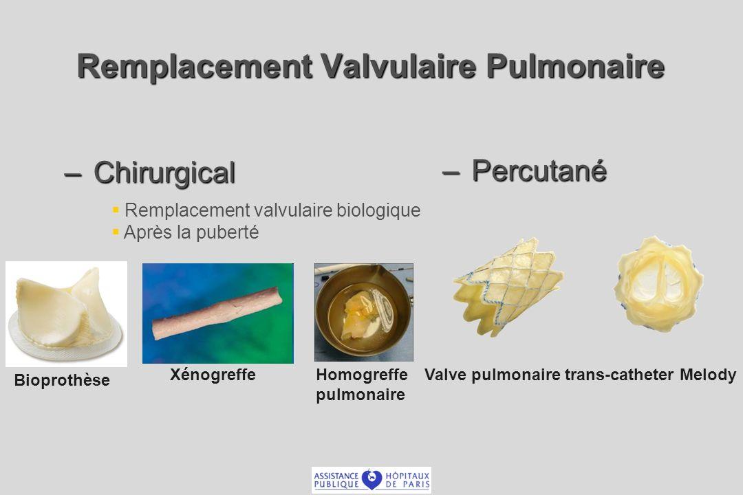 Remplacement Valvulaire Pulmonaire – Chirurgical – Percutané Bioprothèse XénogreffeHomogreffe pulmonaire Valve pulmonaire trans-catheter Melody Remplacement valvulaire biologique Après la puberté