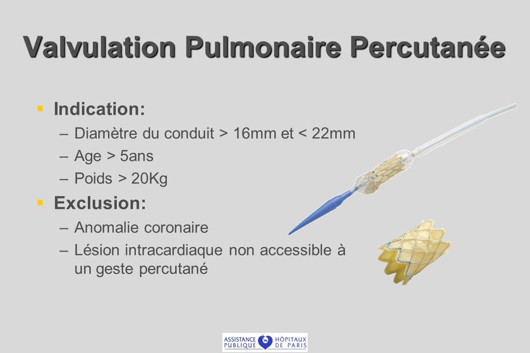 Valvulation Pulmonaire Percutanée Indication: –Diamètre du conduit > 16mm et < 22mm –Age > 5ans –Poids > 20Kg Exclusion: –Anomalie coronaire –Lésion intracardiaque non accessible à un geste percutané