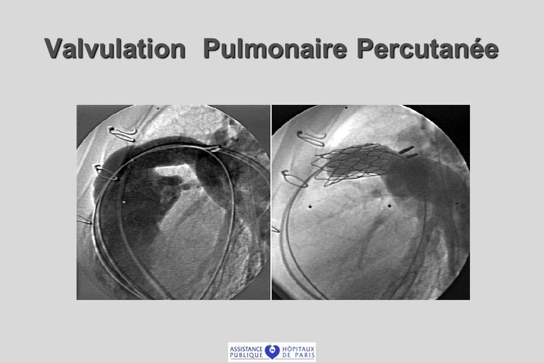 Valvulation Pulmonaire Percutanée