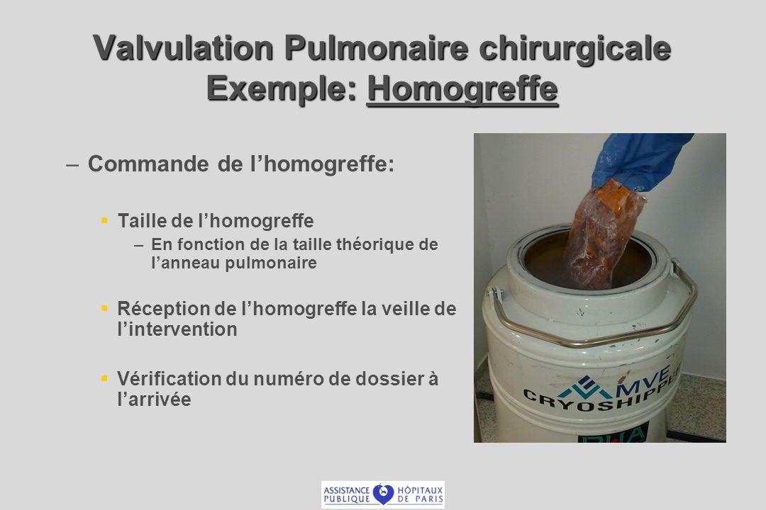 Valvulation Pulmonaire chirurgicale Exemple: Homogreffe – –Commande de lhomogreffe: Taille de lhomogreffe – –En fonction de la taille théorique de lanneau pulmonaire Réception de lhomogreffe la veille de lintervention Vérification du numéro de dossier à larrivée